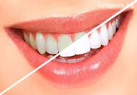 Професионално избелване на зъби с LED лампа робот BEYOND POLUS ADVANCED от Стоматологична клиника д-р Георгиев